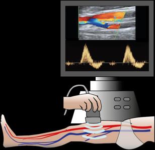 echographie vaisseau